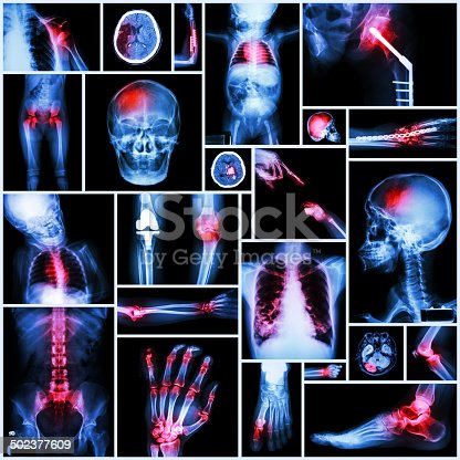 istock Collection X-ray part of human,Orthopedic operation,Multiple disease 502377609