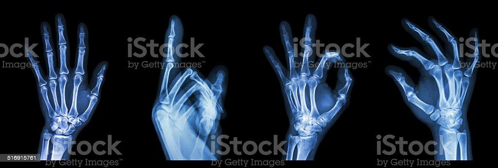 Kolekcja Symbol Rentgenowskie Rąk Stockowe Zdjęcia I Więcej