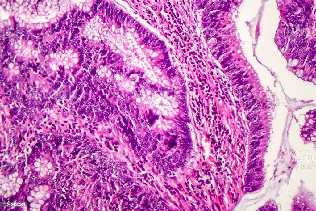 Adenocarcinoma de cólon, câncer de cólon - foto de acervo