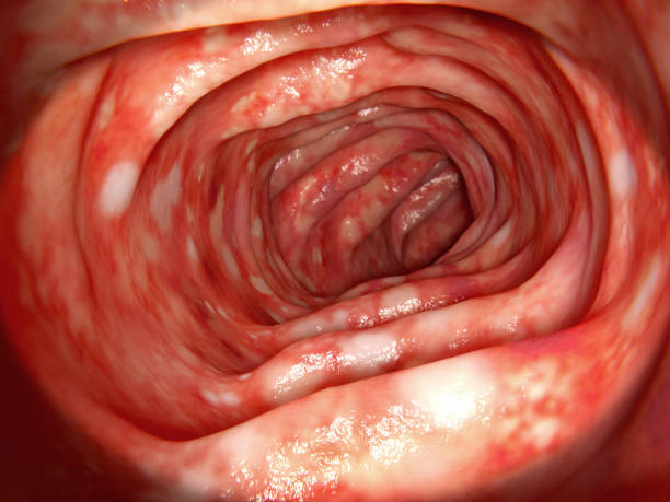 colon affected by ulcerative colitis - human intestine stock photos and pictures