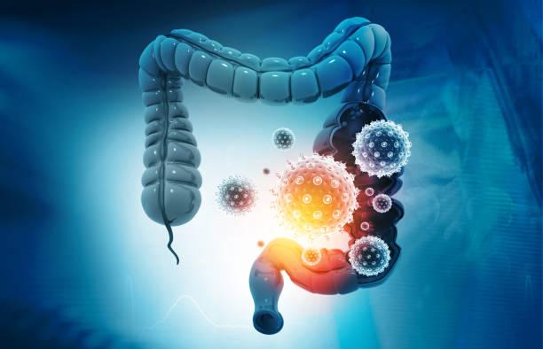 Colon cancer, bacteria, viruses in sick unhealthy intestine stock photo