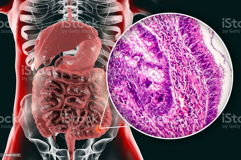 Colon cancer, illustration and photo under microscope stock photo