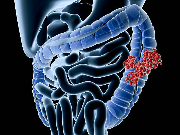 colon cancer - human intestine stock photos and pictures