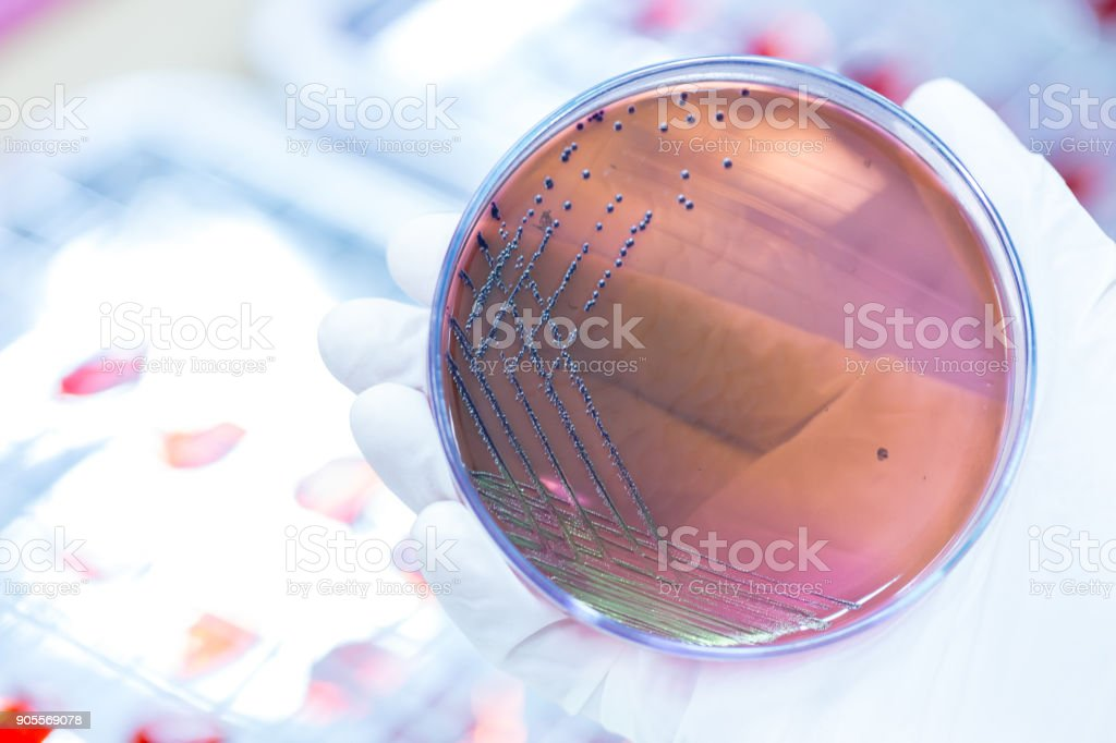 Colony Characteristics of Escherichia coli (E. coli) is a Gram-negative, facultatively anaerobic, rod-shaped, coliform bacterium of the genus Escherichia that is commonly found in the lower intestine of warm-blooded organisms (endotherms) of microbiology stock photo