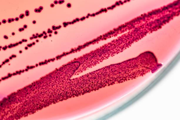 kolonin egenskaper av escherichia coli (e. coli) är en gramnegativa, fakultativt anaerob, stavformade, koliforma bakterie i släktet escherichia som är vanligt förekommande i lägre tarmen. - resistance bacteria bildbanksfoton och bilder