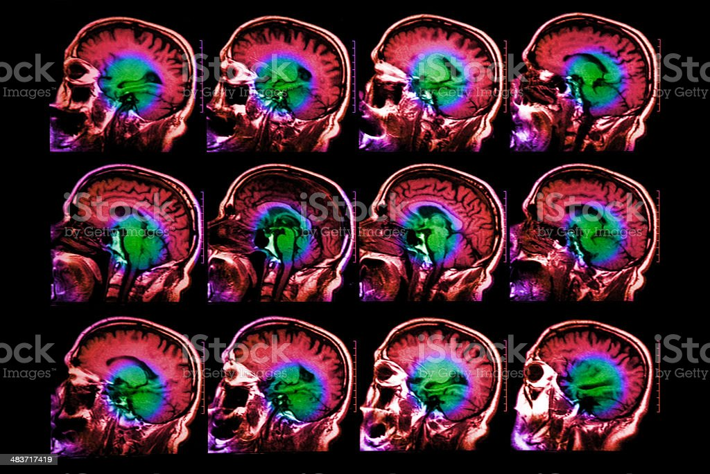Coloured magnetic resonance  head scan stock photo