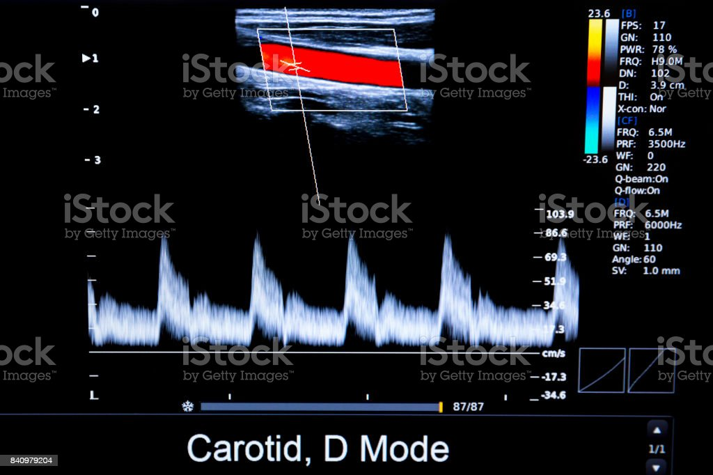 Colourful image of homan heart ultrasound monitor stock photo