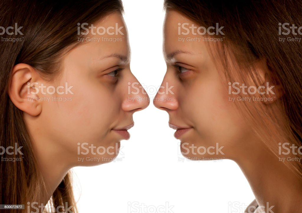 comarative portrait of young woman before and after nose correction on white background stock photo