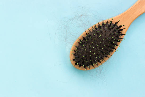 comb with hair on a blue background, the problem of hair loss, the concept of hair care comb with hair on a blue background, the problem of hair loss, the concept of hair care hairbrush stock pictures, royalty-free photos & images