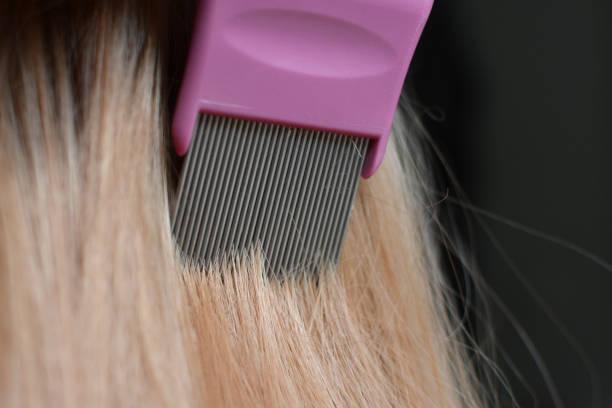 kämmen blondes haar mit einem läuse kamm - kopfläuse was tun stock-fotos und bilder