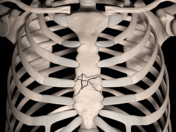 fracture sternale comminutée - sternum photos et images de collection