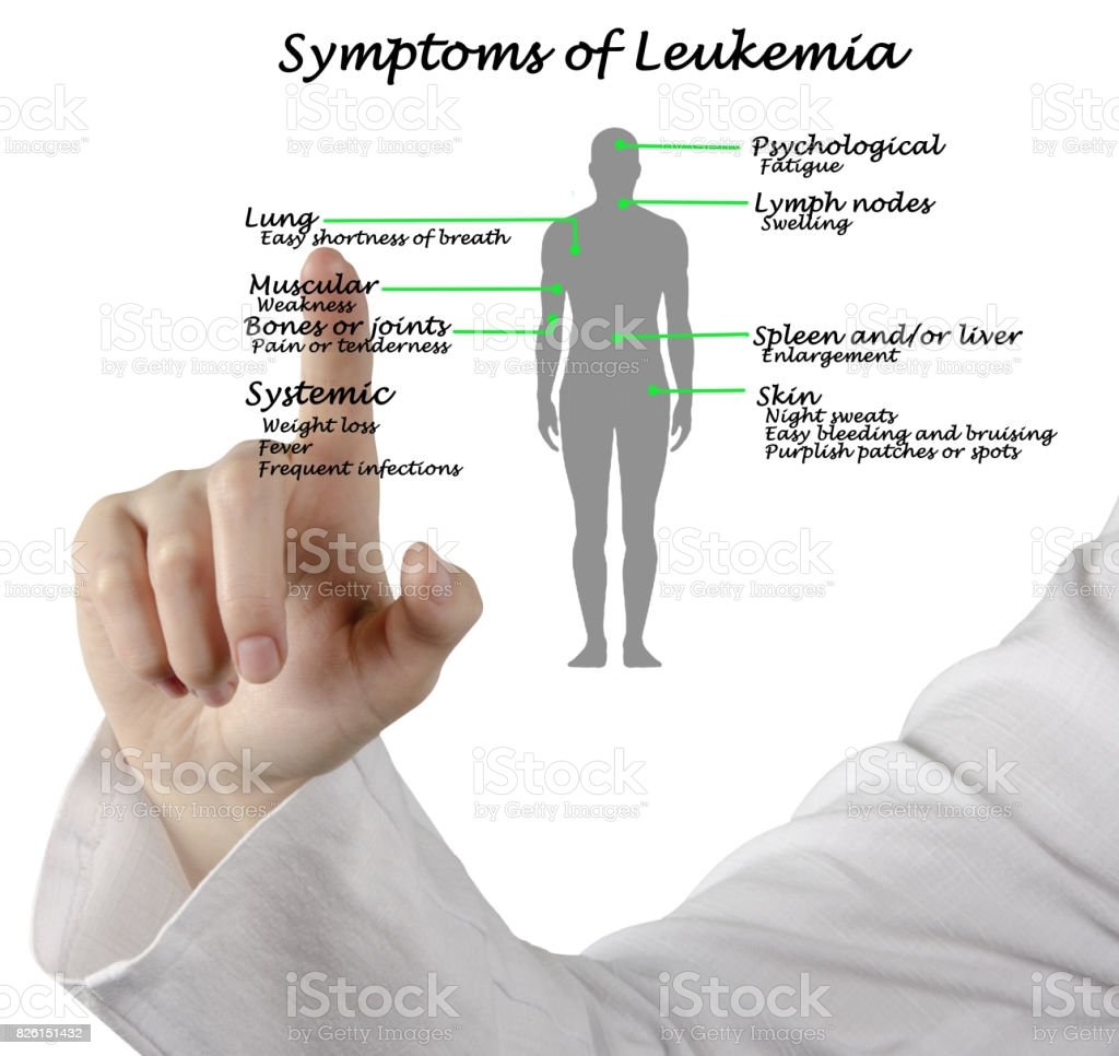 Common Symptoms of Leukemia stock photo