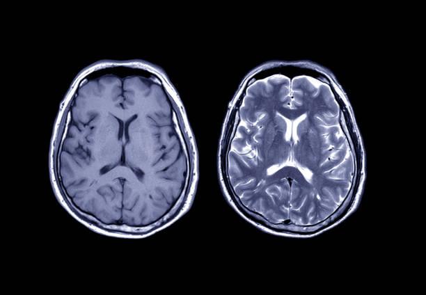 Vergleich MRT Gehirn Axial T1 und T2 für eine Vielzahl von Bedingungen des Gehirns wie Zysten, Tumoren, Blutungen, Schwellungen, Entwicklungs- und strukturelle Anomalien, Infektionen zu erkennen. – Foto