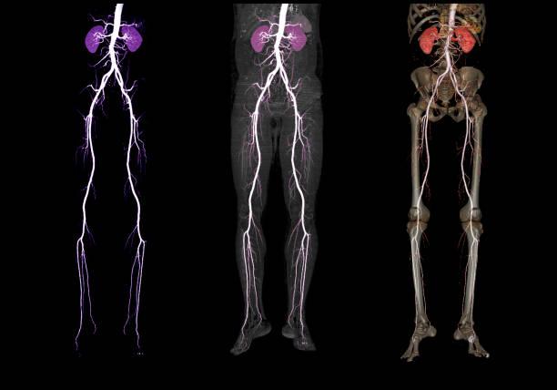 Der Vergleich der CTA Oberschenkelarterie läuft aus 3D Rendering Bild der Oberschenkelarterie mit der Niere für Patienten, die mit akuter oder chronischer peripheren Arterienkrankheit präsentiert werden. – Foto