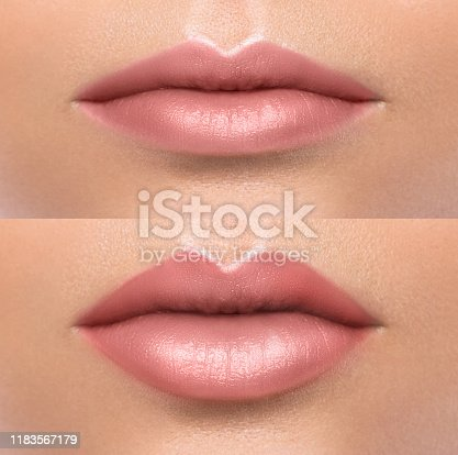 Comparison of female lips before and after augmentation