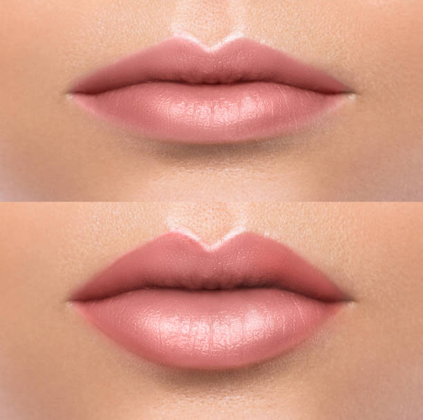 Comparison of female lips after augmentation Comparison of female lips before and after augmentation human lips stock pictures, royalty-free photos & images