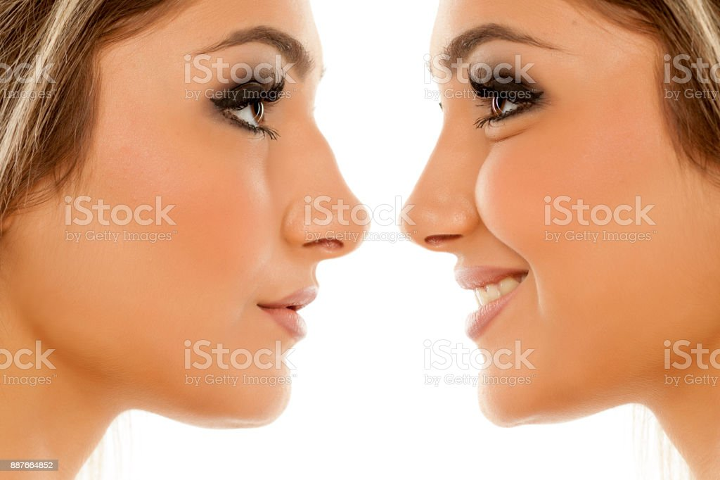 Comparison of female nose, before and after plastic surgery stock photo