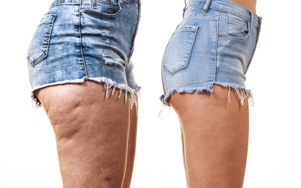 Comparison of legs with and without cellulite stock photo