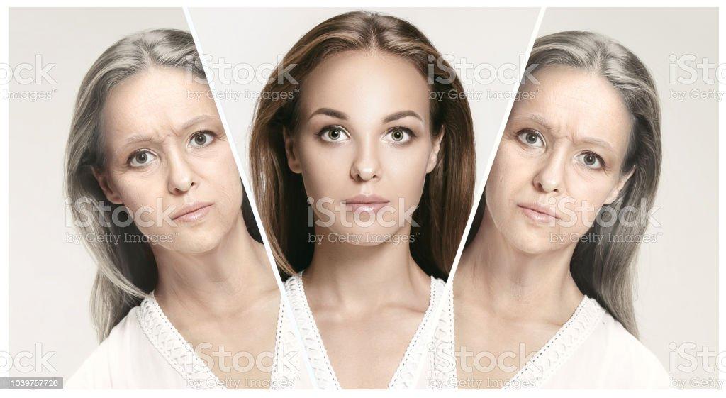 Vergleich. Portrait der schönen Frau mit Problem und saubere Haut, Hautalterung und Jugend-Konzept, Beauty-Behandlung – Foto
