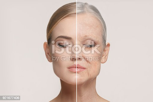 istock Comparison. Portrait of beautiful woman with problem and clean skin, aging and youth concept, beauty treatment 921677406