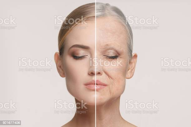 Comparison portrait of beautiful woman with problem and clean skin picture id921677406?b=1&k=6&m=921677406&s=612x612&h=ngogxl7acv7lq lyrsw5u6y i55highciqfg4anupje=