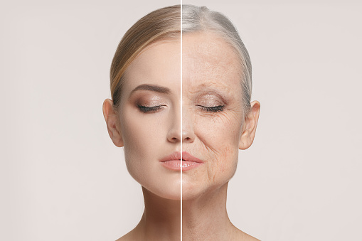 Comparison Portrait Of Beautiful Woman With Problem And Clean Skin Aging And Youth Concept Beauty Treatment - Fotografie stock e altre immagini di Accudire