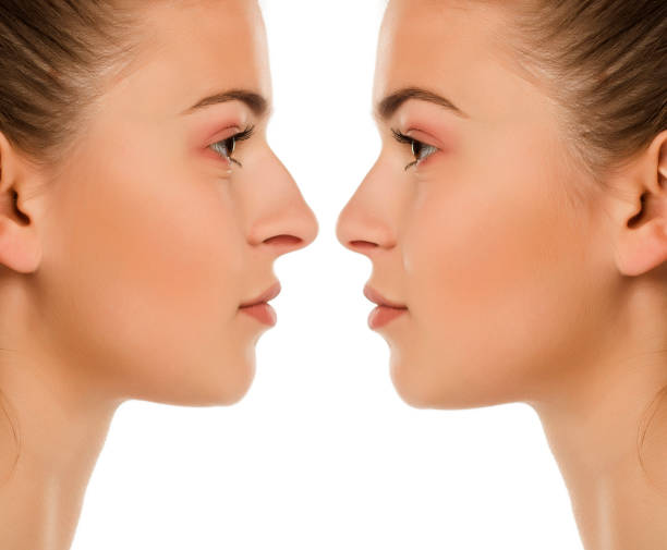 Comparison portrait of same woman before and after nose surgery on white background stock photo