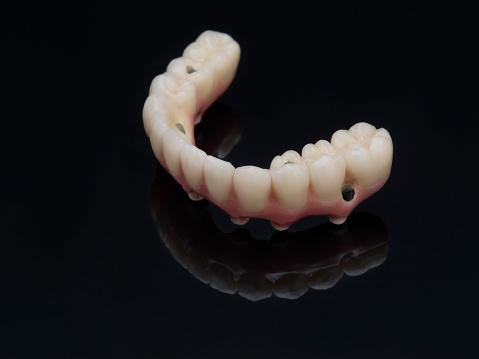 Komplette Untere Prothese Dental Über Schwarzglas Geschraubt Stockfoto und mehr Bilder von Ausrüstung und Geräte