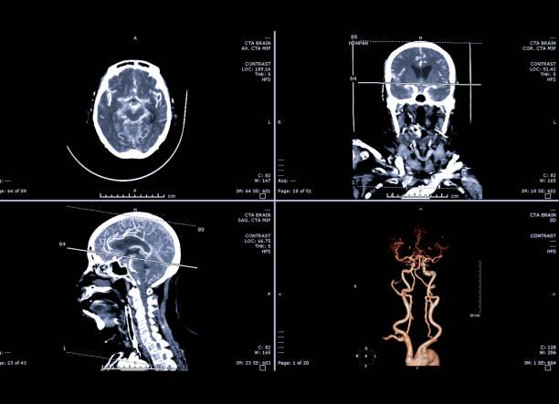 Computertomographie Angiographie oder CTA Gehirn-3D-Rendering Bild, koronal, sagittal und axial Ebene für die Suche nach Stroke und Aneurysma-Krankheit. – Foto
