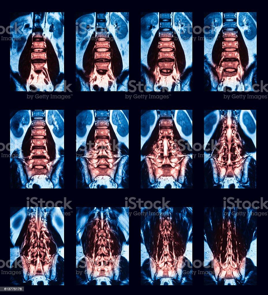 Computed Tomography Spine Stock-Fotografie und mehr Bilder von ...