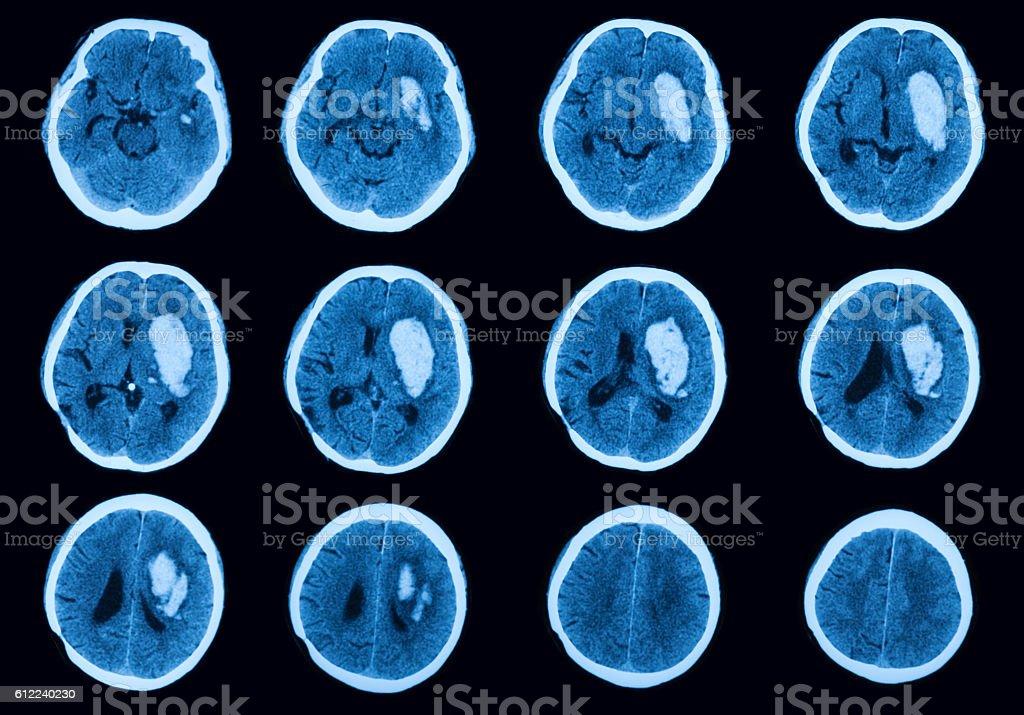Computed Tomography(CT) of brain - foto de stock