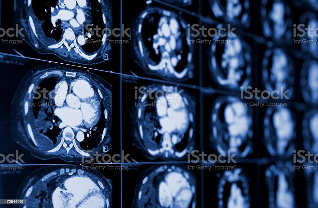 computed tomography of the chest. Medical background. stock photo