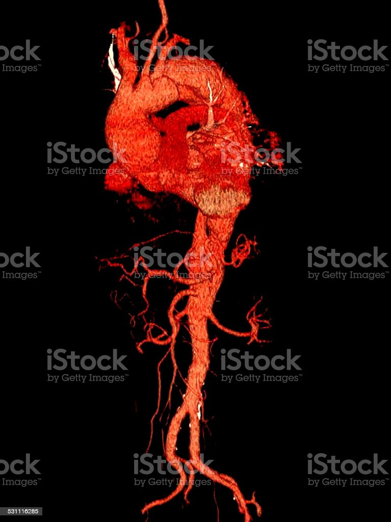 3D computed tomography reconstruction of the heart and aorta stock photo