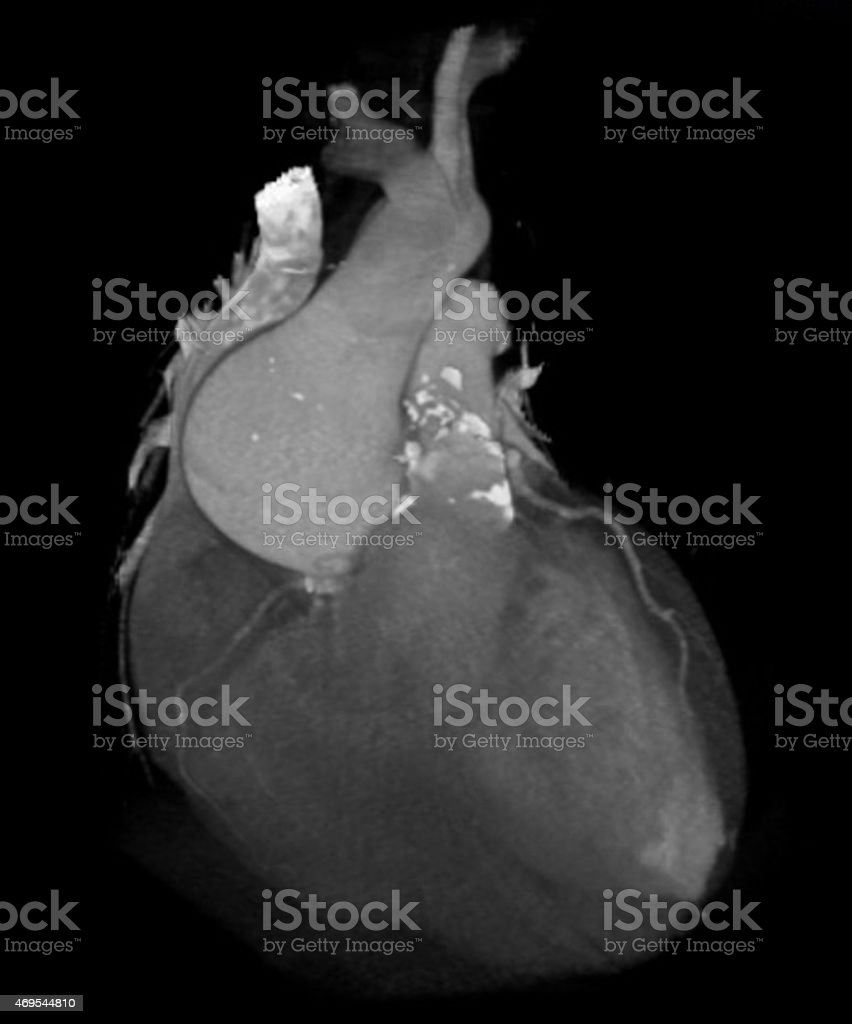 3D computed tomography reconstruction of the heart stock photo