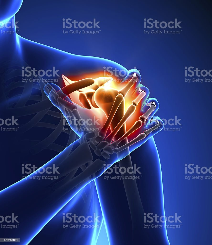 Computer generated concept of shoulder pain stock photo