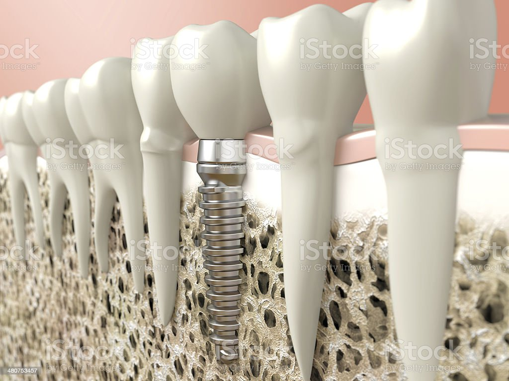 Computer generated image of dental implant stock photo