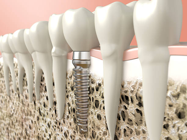Computer generierte Bild von dental Audiosystem – Foto
