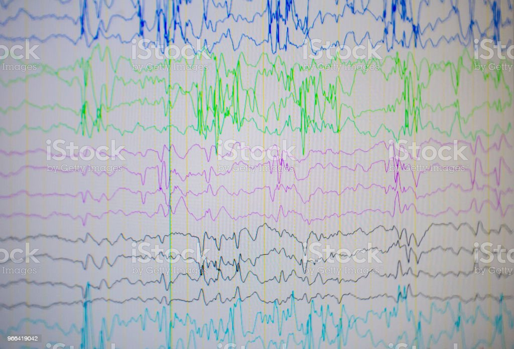 A computer monitor showing electrical activity of abnormal brain, electroencephalogram,EEG stock photo