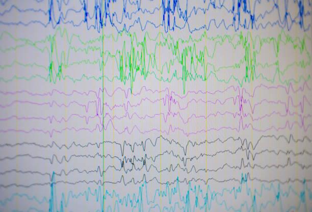 Um monitor de computador, mostrando a atividade elétrica do cérebro anormal, eletroencefalograma, EEG - foto de acervo