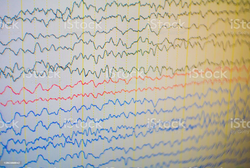 Computer monitor showing electrical activity of abnormal brain,EEG of the pediatric patients with problems in the brain. stock photo