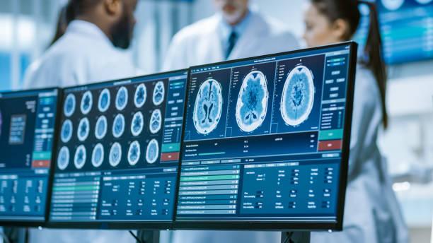tela de computador, mostrando a imagem de ressonância magnética, tomografia computadorizada do cérebro. na reunião da equipe de médicos cientistas no laboratório de pesquisa do cérebro fundo. neurologistas / neurocientistas tendo discussão analíti - exame médico equipamento médico - fotografias e filmes do acervo