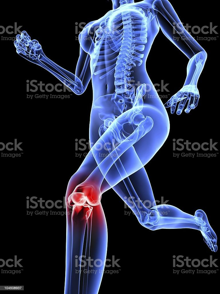 Computer X-ray of female skeleton with knee pain stock photo