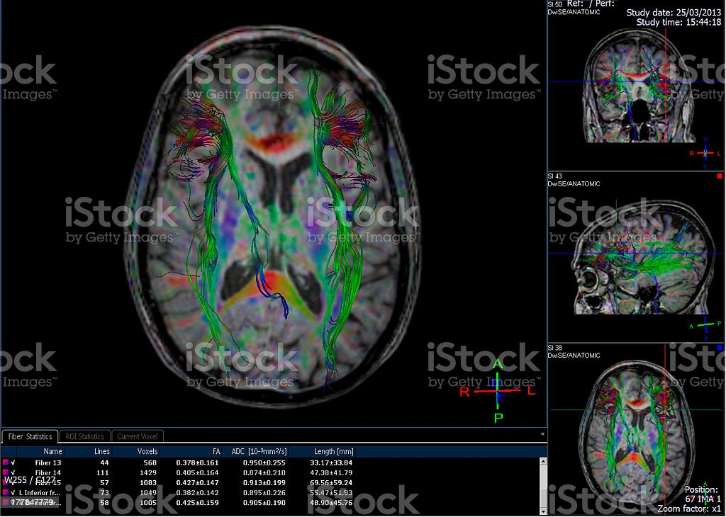 Computer-generated image of brain tractography stock photo