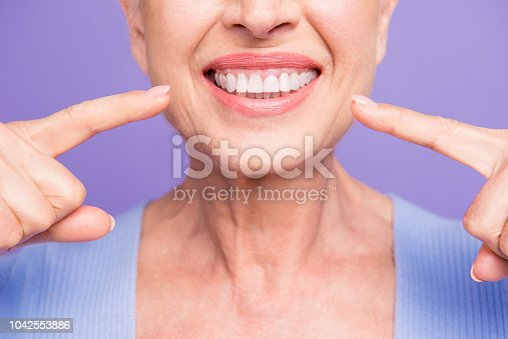 istock Concept of having strong healthy straight white perfect teeth at old age. Cropped portrait of beaming smile female pensioner pointing on her teeth, isolated over violet background 1042553886