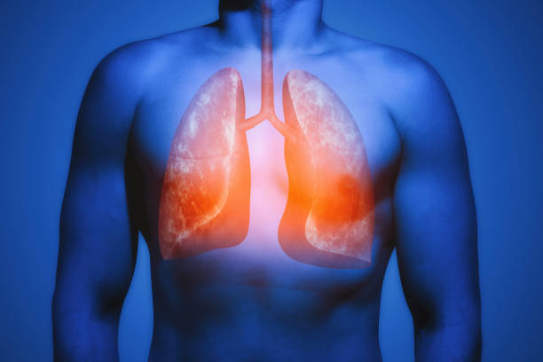 Concept of healthy lungs. The human lungs in the male body. Concept of healthy lungs. lung stock pictures, royalty-free photos & images
