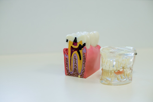 istock Concept of over-consumption, excessive candies, sugar consumption and dental diseases, caries, cavities. Tooth model with dental caries, abscesses surrounded by candies, sweets 982292328