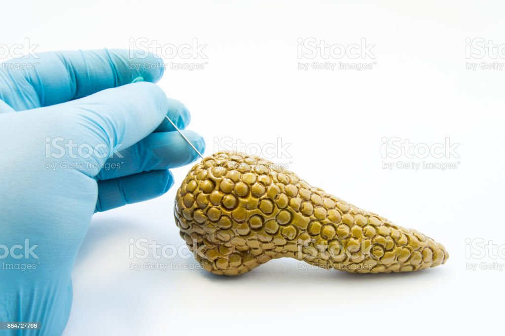 Concept of puncture procedure of pancreas. Gloved surgeon hand pierces anatomical model of pancreas for drainage histological diagnosis of cells or cytology of diabetes, pseudocysts, pancreatic injury stock photo