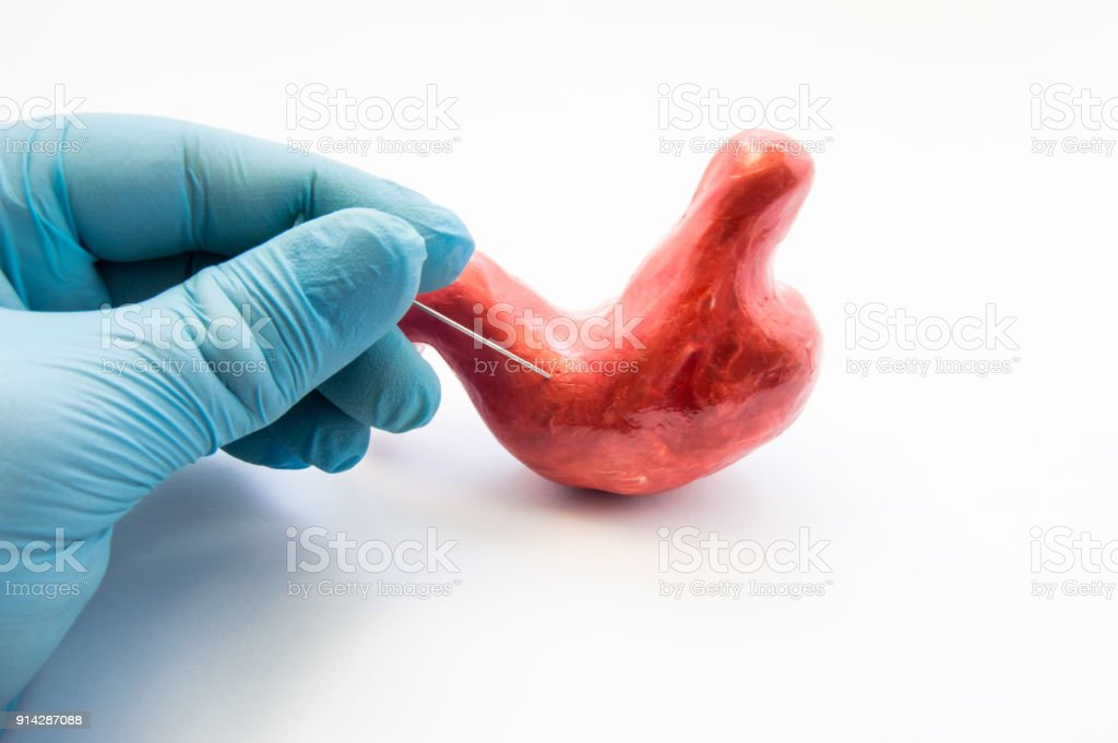 Concept of stomach puncture or gastrointestinal perforation. Hand of surgeon pierces wall of model of human stomach for therapeutic purposes or for biopsy tissue analysis by histology or cytology stock photo