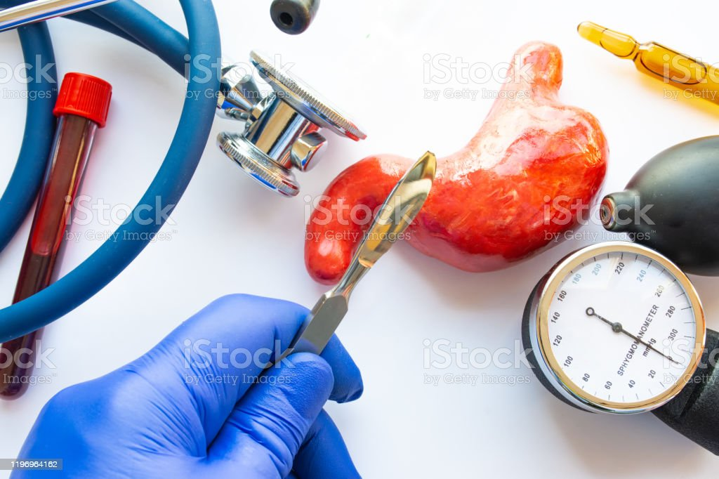 Concept Photo Of Stomach Or Gastric Surgery Doctor With Scalpel In His Hand Makes An Incision In Figure Of Human Stomach Which Is Located Near Medical Toolkit Stethoscope Lab Tube With Blood