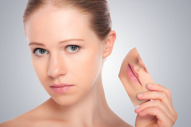 concept skincare . Skin of beauty young woman concept skincare . Skin of beauty young woman with herpes on lips, redness, skin problems, acne, rashes on a gray background herpes stock pictures, royalty-free photos & images